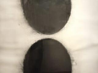 Donald Sultan, Black Eggs